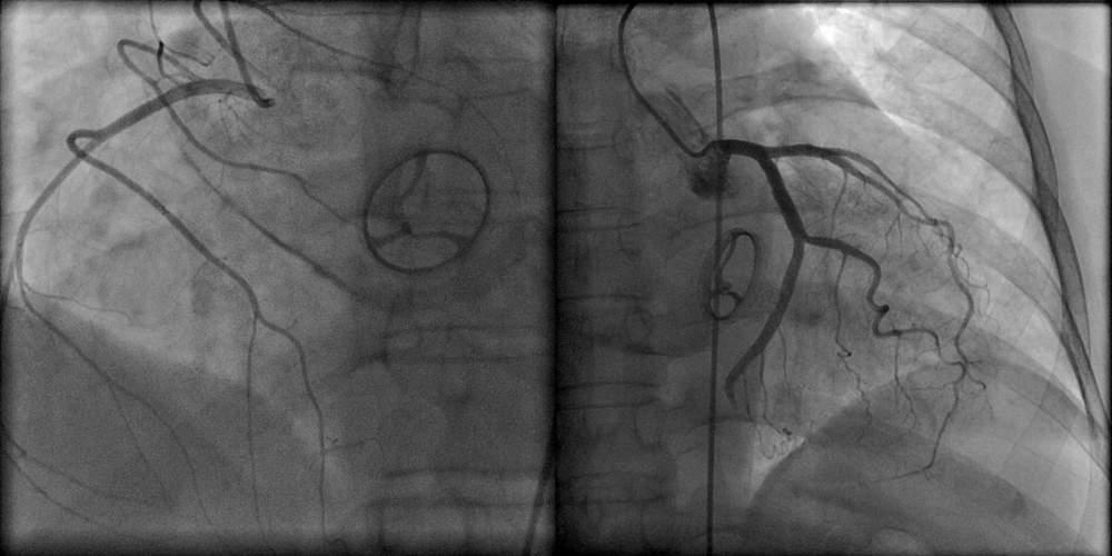 Angiologia: lividi e problemi vascolari