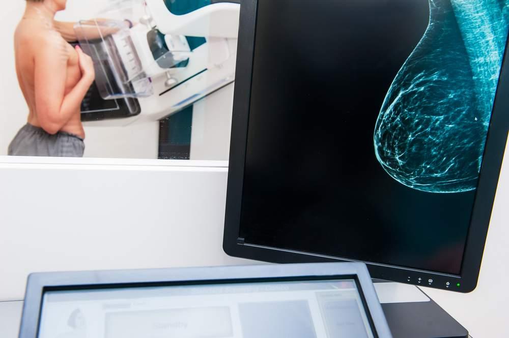 Diagnostica Senologica: nuovi mammografi digitali con tomosintesi