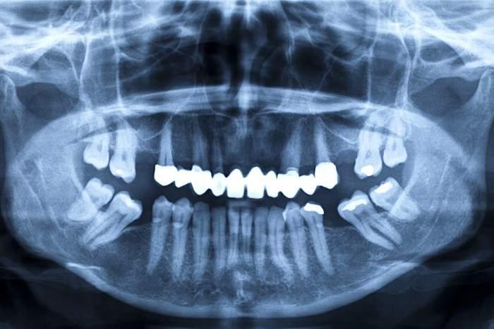 clinica dentale torino odontolarc panoramica