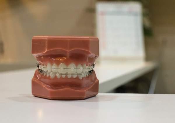 dentista torino odontolarc ortodonzia